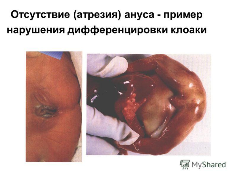 Отсутствие (атрезия) ануса - пример нарушения дифференцировки клоаки