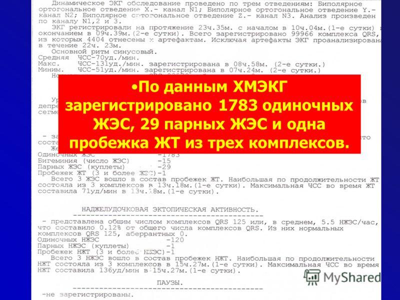 По данным ХМЭКГ зарегистрировано 1783 одиночных ЖЭС, 29 парных ЖЭС и одна пробежка ЖТ из трех комплексов.
