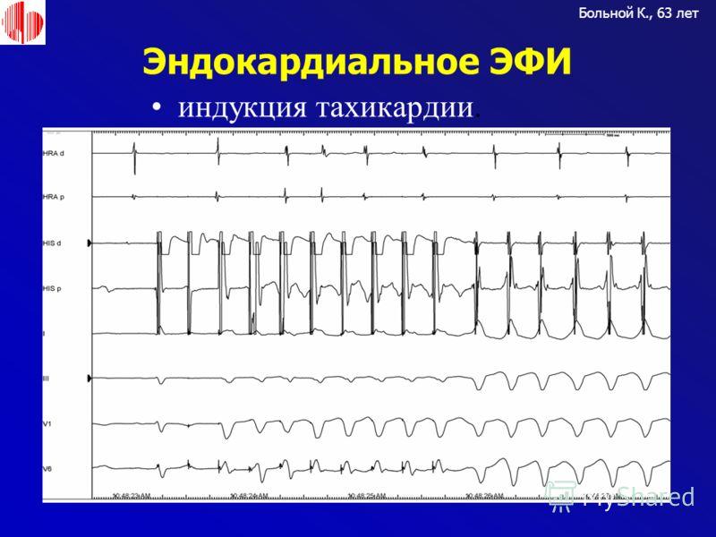 Эндокардиальное ЭФИ Больной К., 63 лет индукция тахикардии.