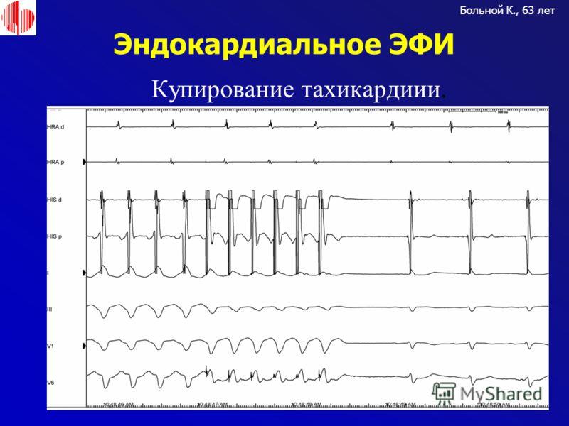 Эндокардиальное ЭФИ Больной К., 63 лет Купирование тахикардиии.