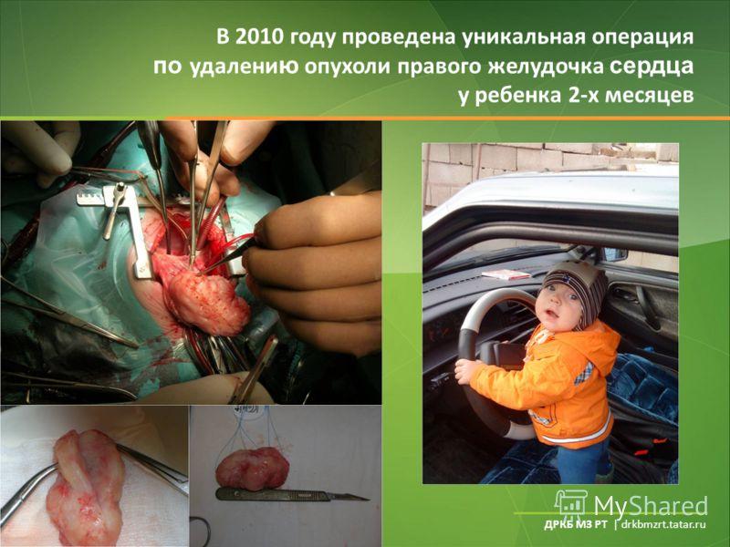ДРКБ МЗ РТ | drkbmzrt.tatar.ru В 2010 году проведена уникальная операция по удалени ю опухоли правого желудочка сердца у ребенка 2-х месяцев