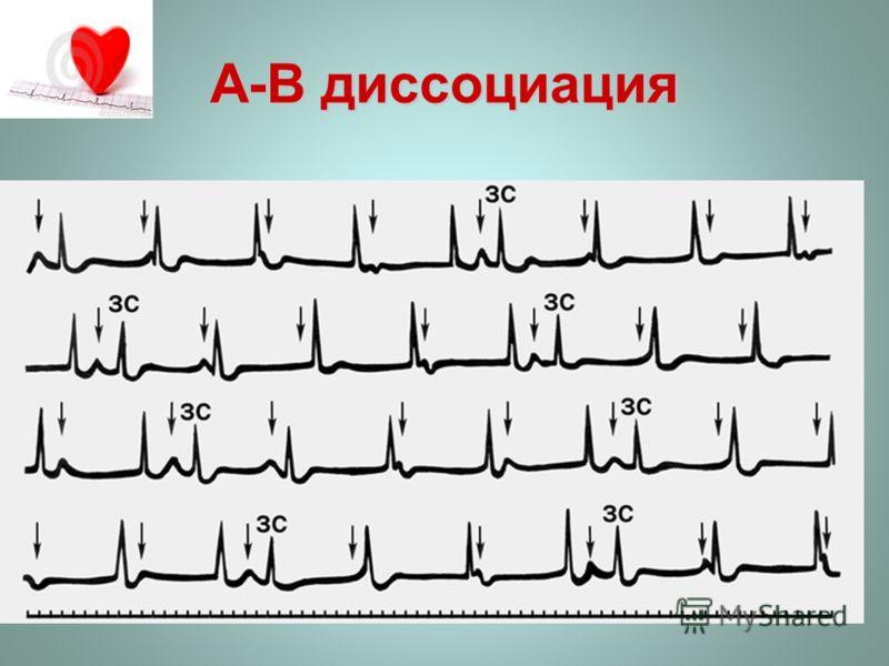 A-В диссоциация