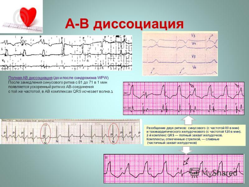 Полная АВ диссоциация (до и после синдромома WPW) После замедления синусового ритма с 81 до 71 в 1 мин появляется ускоренный ритм из АВ-соединения с той же частотой, в АВ комплексах QRS исчезает волна A-В диссоциация Разобщение двух ритмов: синусовог