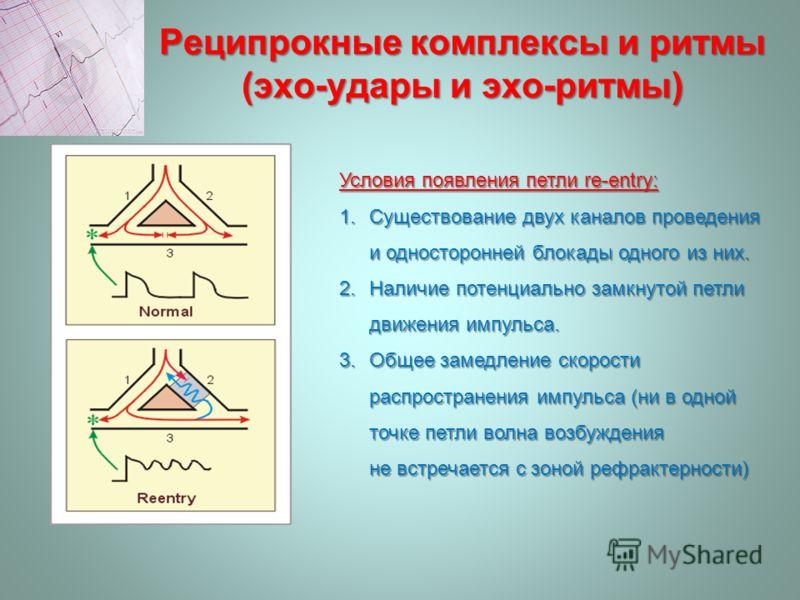 Реципрокные комплексы и ритмы (эхо-удары и эхо-ритмы) Условия появления петли re-entry: 1.Существование двух каналов проведения и односторонней блокады одного из них. 2.Наличие потенциально замкнутой петли движения импульса. 3.Общее замедление скорос