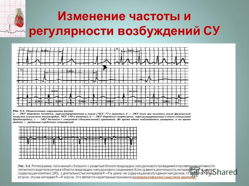 Изменение частоты и регулярности возбуждений СУ Рис. 6.4. Ритмограмма, полученная у больного с развитым блоком предсердно-желудочкового проведения и проявлением активности латентного водителя ритма в области предсердно-желудочкового соединения. Если