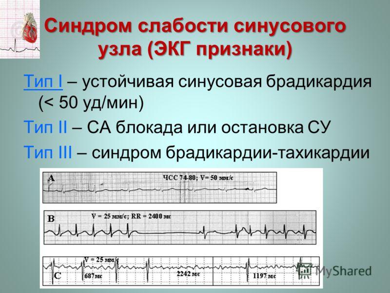 Синдром слабости синусового узла (ЭКГ признаки) Тип І – устойчивая синусовая брадикардия (< 50 уд/мин) Тип ІІ – СА блокада или остановка СУ Тип ІІІ – синдром брадикардии-тахикардии