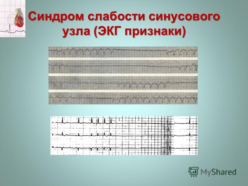 Синдром слабости синусового узла (ЭКГ признаки)