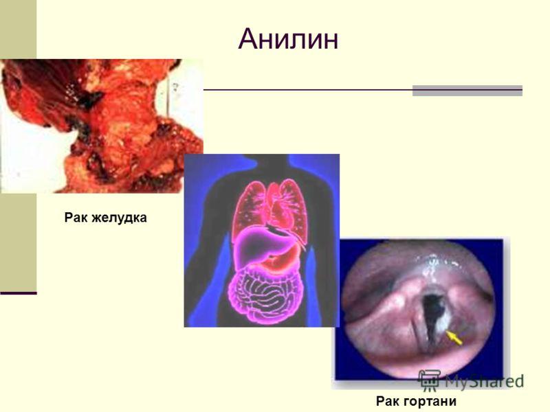 Анилин Рак гортани Рак желудка