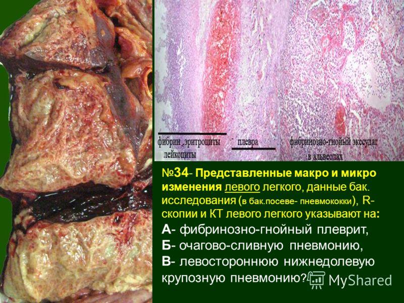 34 - Представленные макро и микро изменения левого легкого, данные бак. исследования ( в бак.посеве- пневмококки ), R- скопии и КТ левого легкого указывают на: А- фибринозно-гнойный плеврит, Б- очагово-сливную пневмонию, В- левостороннюю нижнедолевую