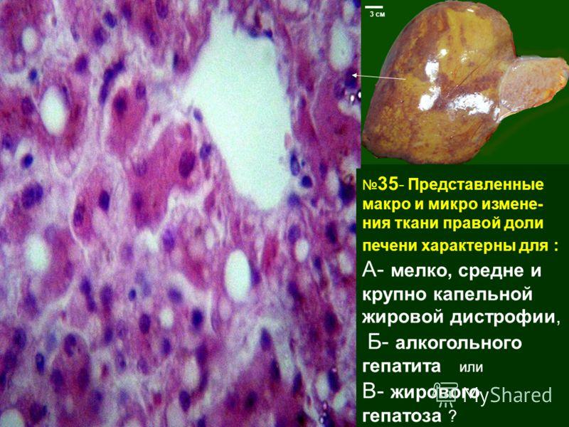 35 - Представленные макро и микро измене- ния ткани правой доли печени характерны для : А- мелко, средне и крупно капельной жировой дистрофии, Б- алкогольного гепатита или В- жирового гепатоза ? 3 см