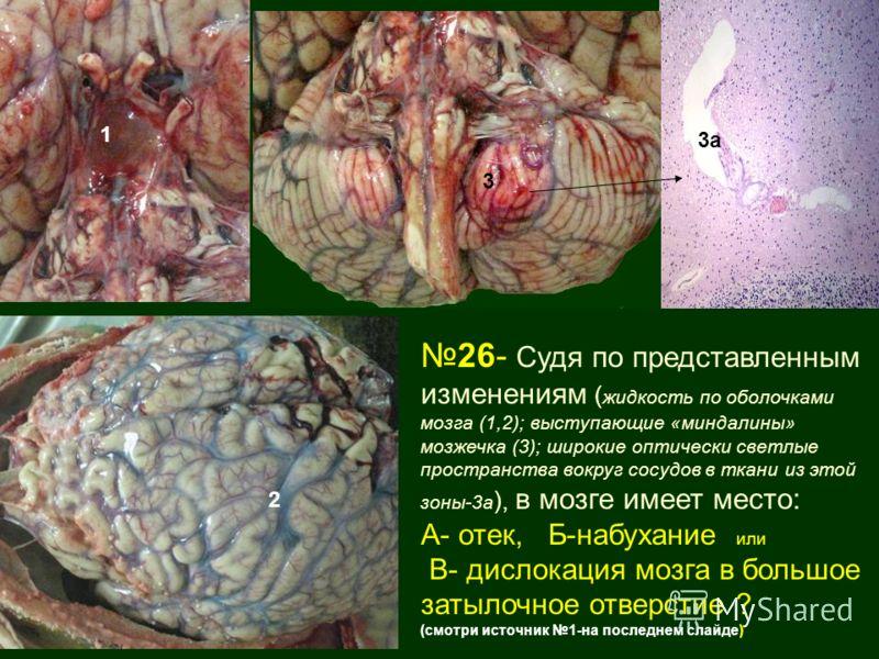 26- Судя по представленным изменениям ( жидкость по оболочками мозга (1,2); выступающие «миндалины» мозжечка (3); широкие оптически светлые пространства вокруг сосудов в ткани из этой зоны-3а ), в мозге имеет место: А- отек, Б-набухание или В- дислок