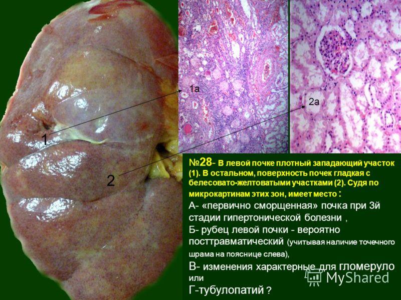 28 - В левой почке плотный западающий участок (1). В остальном, поверхность почек гладкая с белесовато-желтоватыми участками (2). Судя по микрокартинам этих зон, имеет место : А- «первично сморщенная» почка при 3й стадии гипертонической болезни, Б- р