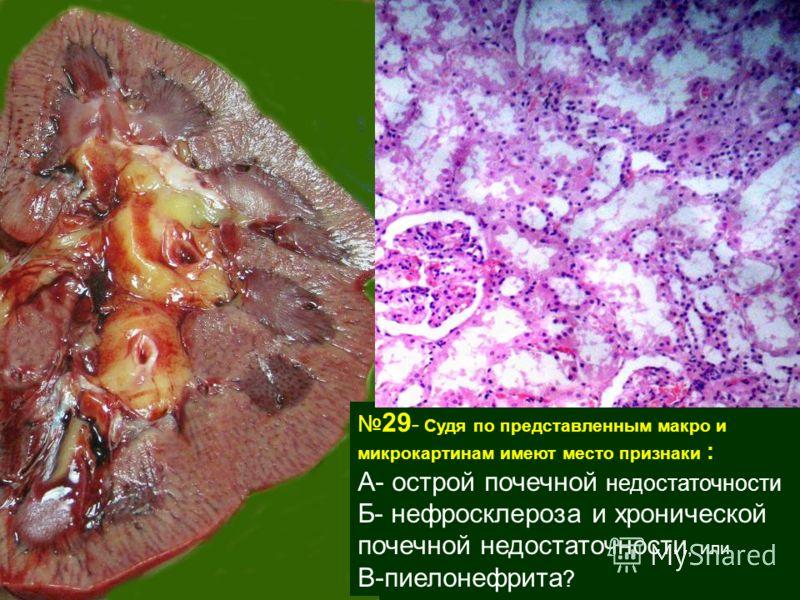 29 - Судя по представленным макро и микрокартинам имеют место признаки : А- острой почечной недостаточности Б- нефросклероза и хронической почечной недостаточности, или В-пиелонефрита ?