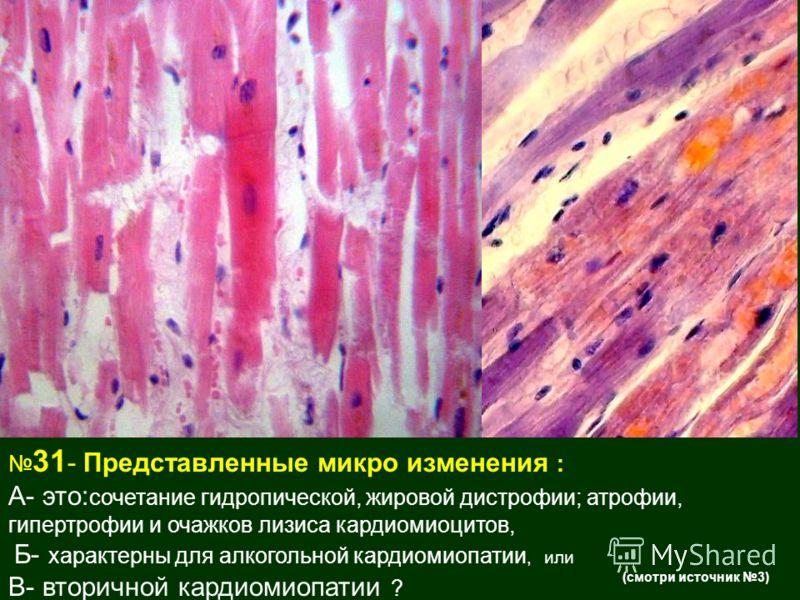 31 - Представленные микро изменения : А- это: сочетание гидропической, жировой дистрофии; атрофии, гипертрофии и очажков лизиса кардиомиоцитов, Б- характерны для алкогольной кардиомиопатии, или В- вторичной кардиомиопатии ? (смотри источник 3)