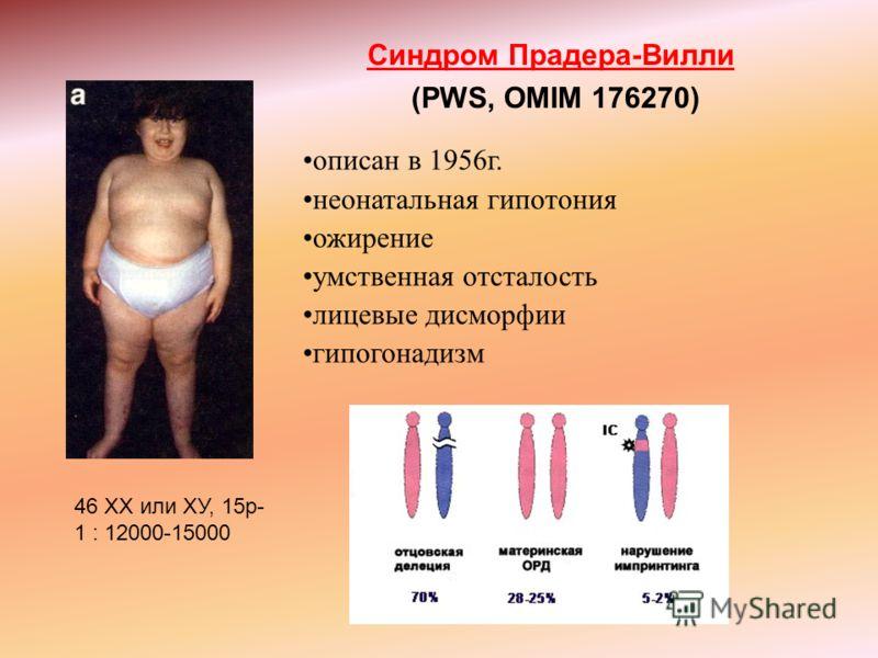 Синдром Прадера-Вилли (PWS, OMIM 176270) описан в 1956г. неонатальная гипотония ожирение умственная отсталость лицевые дисморфии гипогонадизм 46 XX или ХУ, 15р- 1 : 12000-15000