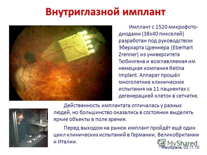 Внутриглазной имплант Имплант с 1520 микрофото- диодами (38х40 пикселей) разработан под руководством Эберхарта Цреннера (Eberhart Zrenner) из университета Тюбингена и возглавляемая им немецкая компания Retina Implant. Аппарат прошёл многолетние клини