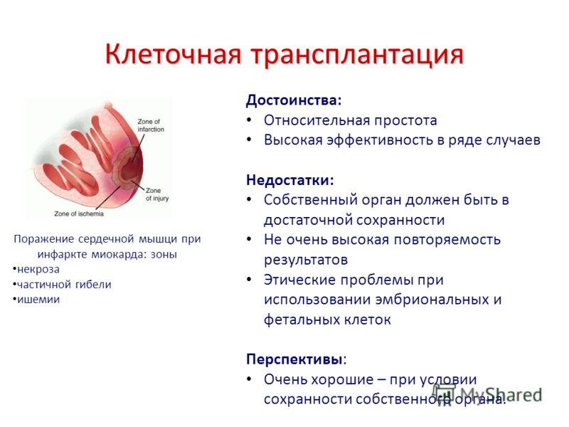 Клеточная трансплантация Поражение сердечной мышци при инфаркте миокарда: зоны некроза частичной гибели ишемии Достоинства: Относительная простота Высокая эффективность в ряде случаев Недостатки: Собственный орган должен быть в достаточной сохранност