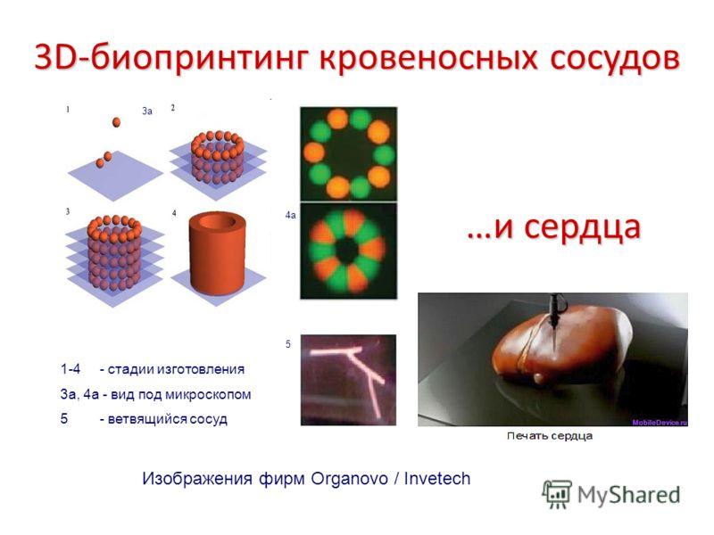 3D-биопринтинг кровеносных сосудов 3a 4a 5 1-4 - стадии изготовления 3а, 4а - вид под микроскопом 5 - ветвящийся сосуд …и сердца Изображения фирм Organovo / Invetech