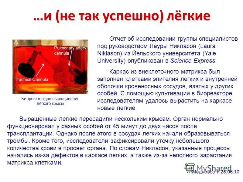 …и (не так успешно) лёгкие Биореактор для выращивания лёгкого крысы Отчет об исследовании группы специалистов под руководством Лауры Никласон (Laura Niklason) из Йельского университета (Yale University) опубликован в Science Express. Каркас из внекле