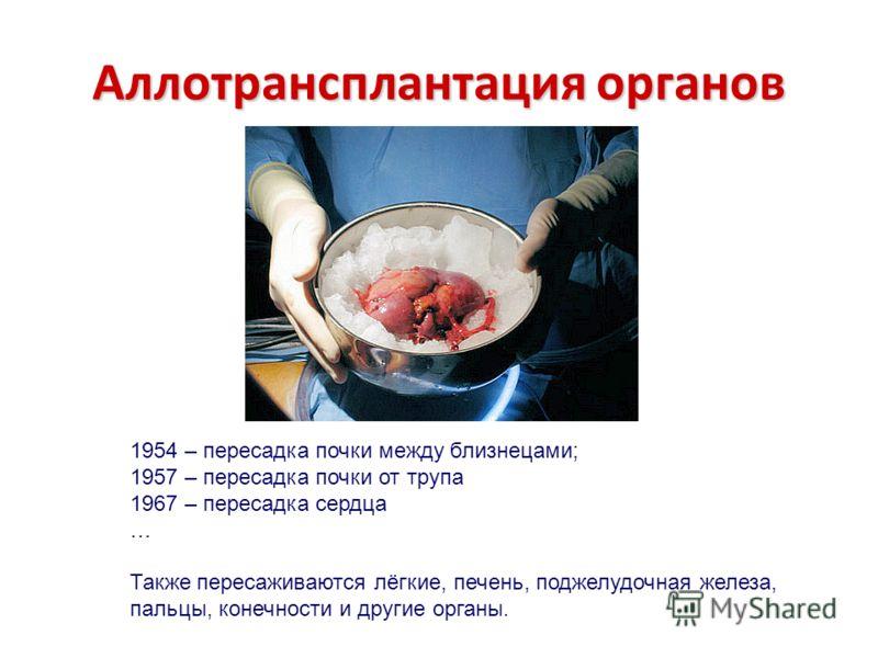 Аллотрансплантация органов 1954 – пересадка почки между близнецами; 1957 – пересадка почки от трупа 1967 – пересадка сердца … Также пересаживаются лёгкие, печень, поджелудочная железа, пальцы, конечности и другие органы.