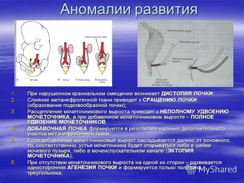 Аномалии развития 1.При нарушенном краниальном смещении возникает ДИСТОПИЯ ПОЧКИ; 2.Слияние метанефрогенной ткани приводит к СРАЩЕНИЮ ПОЧКИ (образование подковообразной почки); 3.Расщепление мочеточникового выроста приводит к НЕПОЛНОМУ УДВОЕНИЮ МОЧЕТ