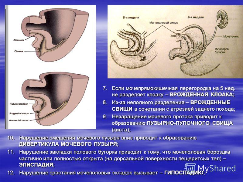 Экстрофия мочевого пузыря фото