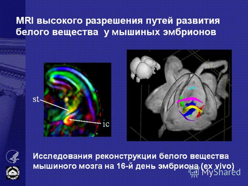 MRI высокого разрешения путей развития белого вещества у мышиных эмбрионов ic st Исследования реконструкции белого вещества мышиного мозга на 16-й день эмбриона (ex vivo)