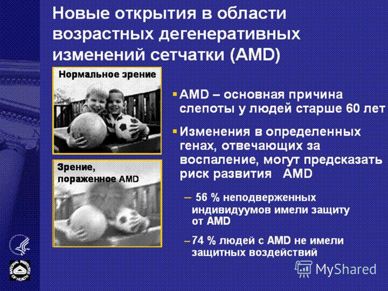 Новые открытия в области возрастных дегенеративных изменений сетчатки (AMD) AMD – основная причина слепоты у людей старше 60 лет Изменения в определенных генах, отвечающих за воспаление, могут предсказать риск развития AMD – 56 % неподверженных индив