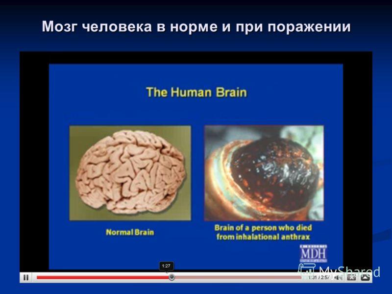 Мозг человека в норме и при поражении