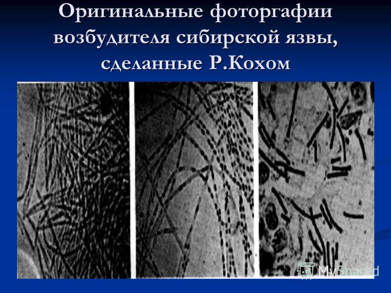 Оригинальные фоторгафии возбудителя сибирской язвы, сделанные Р.Кохом