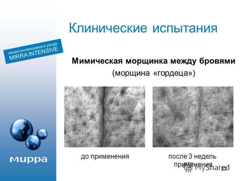 23 Мимическая морщинка между бровями (морщина «гордеца») линия интенсивного ухода MIRRA INTENSIVE Клинические испытания до примененияпосле 3 недель применения