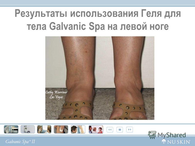 Результаты использования Геля для тела Galvanic Spa на левой ноге