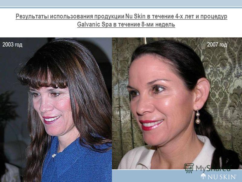 Результаты использования продукции Nu Skin в течение 4-х лет и процедур Galvanic Spа в течение 8-ми недель 35 2003 год2007 год