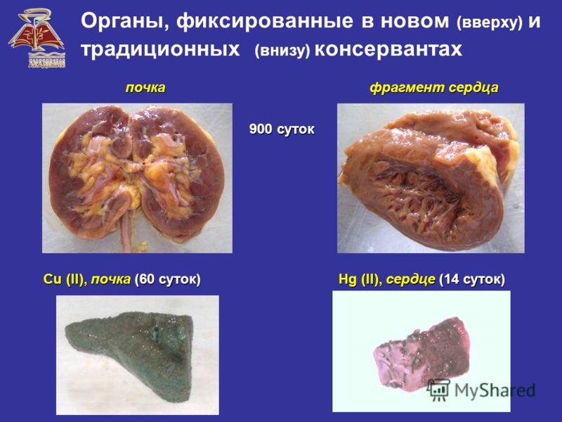 Органы, фиксированные в новом (вверху) и традиционных (внизу) консервантах Hg (II), сердце (14 суток) Cu (II), почка (60 суток) 900 суток почка фрагмент сердца