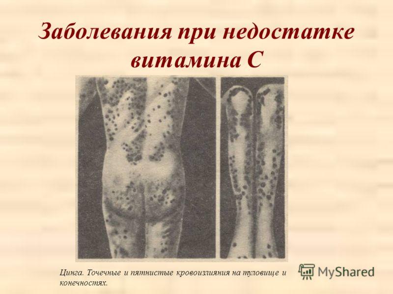 Заболевания при недостатке витамина С Цинга. Точечные и пятнистые кровоизлияния на туловище и конечностях.