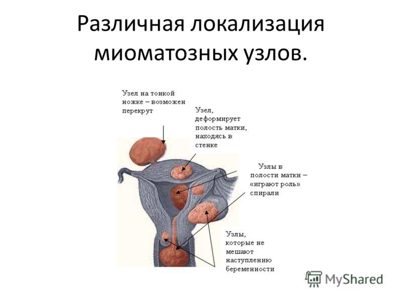 Различная локализация миоматозных узлов.