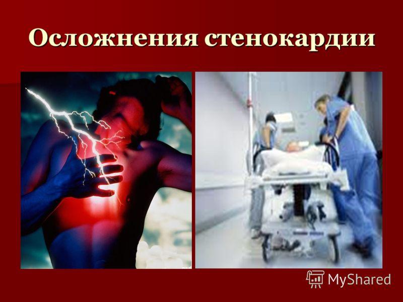 Осложнения стенокардии