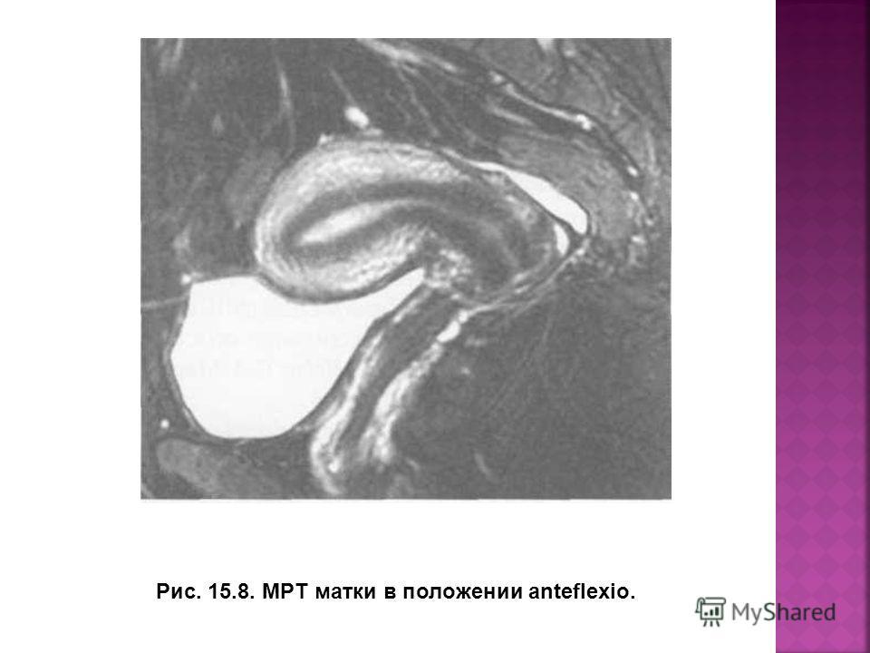 Рис. 15.8. МРТ матки в положении anteflexio.