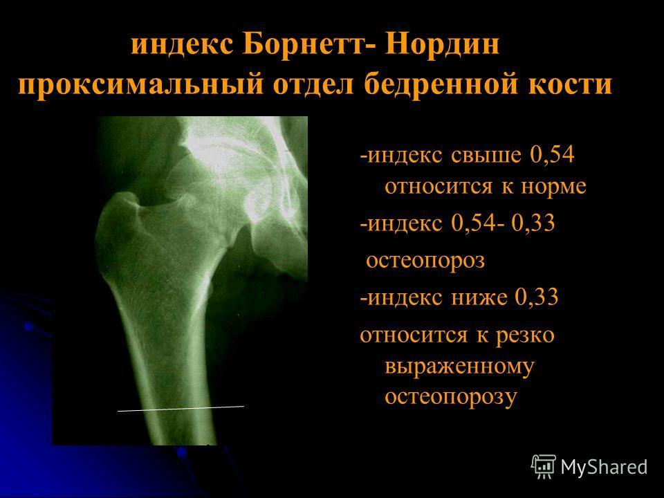 индекс Борнетт- Нордин проксимальный отдел бедренной кости -индекс свыше 0,54 относится к норме -индекс 0,54- 0,33 остеопороз -индекс ниже 0,33 относится к резко выраженному остеопорозу