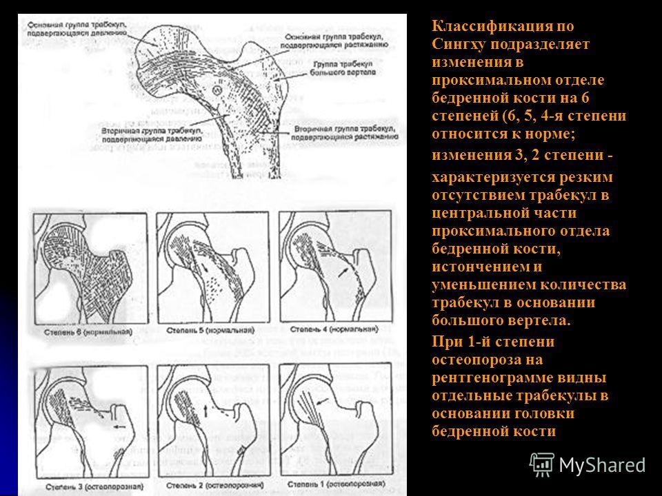 Классификация по Сингху подразделяет изменения в проксимальном отделе бедренной кости на 6 степеней (6, 5, 4-я степени относится к норме; изменения 3, 2 степени - характеризуется резким отсутствием трабекул в центральной части проксимального отдела б