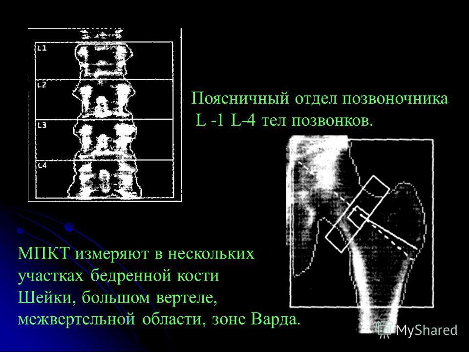 Поясничный отдел позвоночника L -1 L-4 тел позвонков. МПКТ измеряют в нескольких участках бедренной кости Шейки, большом вертеле, межвертельной области, зоне Варда.