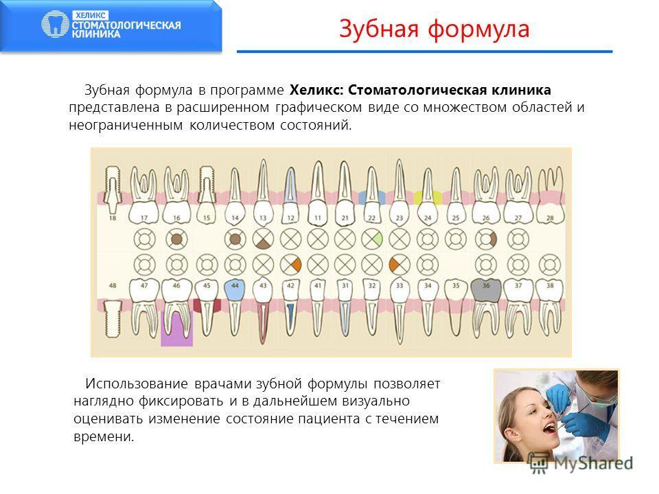 Зубная формула в программе Хеликс: Стоматологическая клиника представлена в расширенном графическом виде со множеством областей и неограниченным количеством состояний. Использование врачами зубной формулы позволяет наглядно фиксировать и в дальнейшем