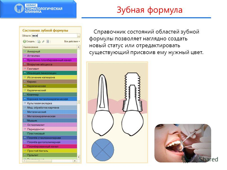 Справочник состояний областей зубной формулы позволяет наглядно создать новый статус или отредактировать существующий присвоив ему нужный цвет. Зубная формула