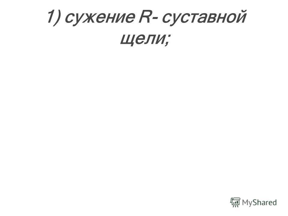 1) сужение R- суставной щели;