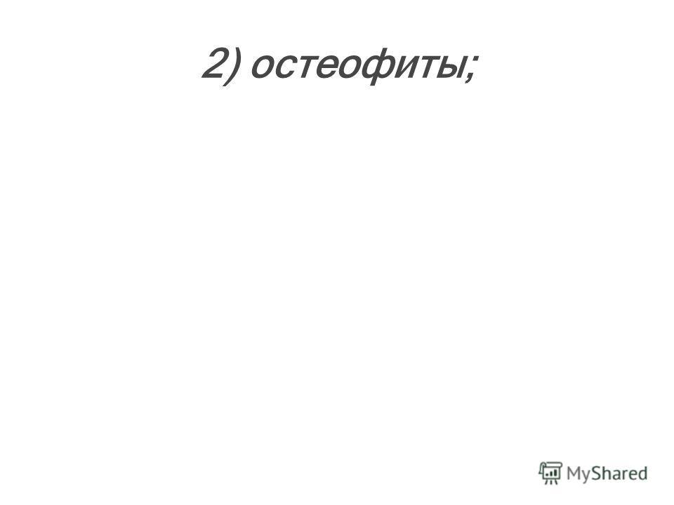 2) остеофиты;