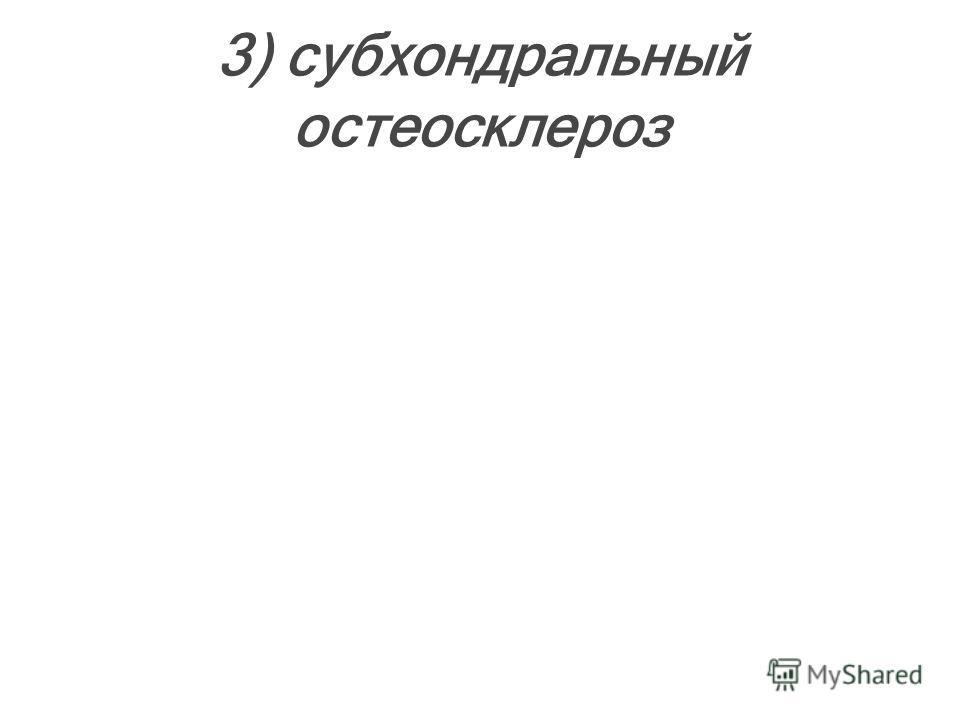 3) субхондральный остеосклероз