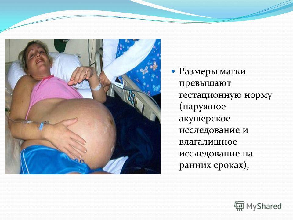 Размеры матки превышают гестационную норму (наружное акушерское исследование и влагалищное исследование на ранних сроках),