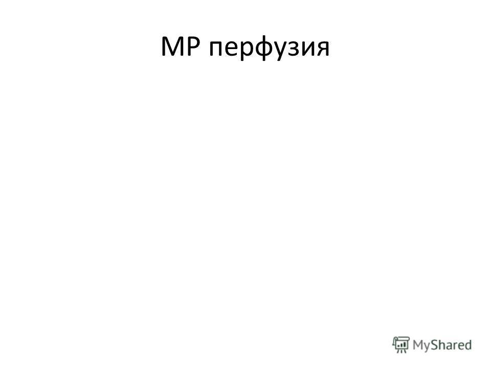 МР перфузия