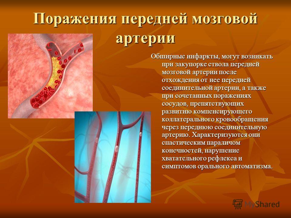 Поражения передней мозговой артерии Обширные инфаркты, могут возникать при закупорке ствола передней мозговой артерии после отхождения от нее передней соединительной артерии, а также при сочетанных поражениях сосудов, препятствующих развитию компенси