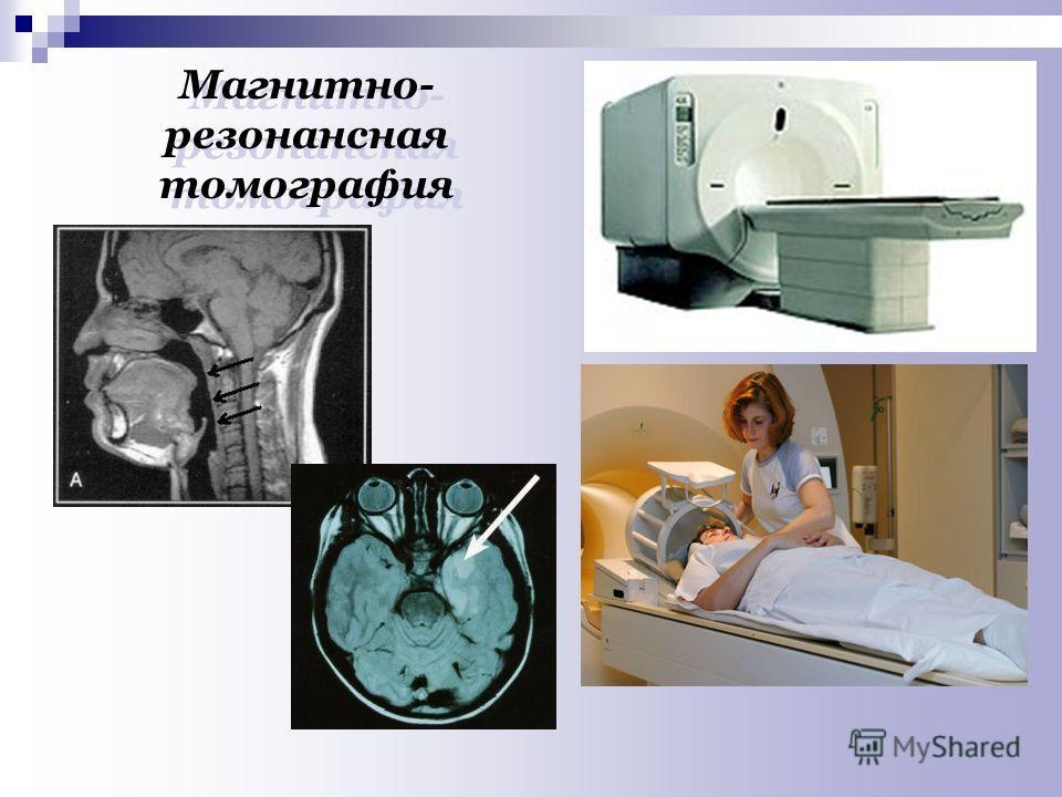 Магнитно- резонансная томография